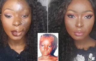 Burn survivor shows the power of make up through these pictures