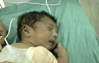 Rare surgery on 2-month-old baby who suffered heart attacks