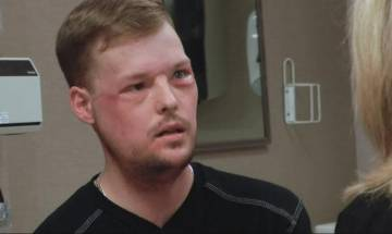 Video: Man gets new identity after successful 50-hour face transplant in US
