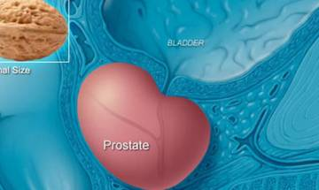 Scientists develop three-in-one blood test for precision prostate cancer therapies