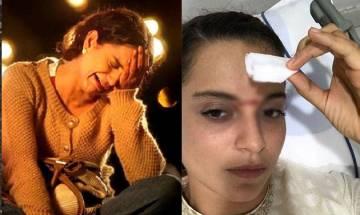 Kangana Ranaut injured on 'Manikarnika' sets; gets 15 stitches on face (see pic)