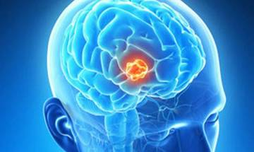Mangalore: Scientists develop drug delivery method to target brain tumour