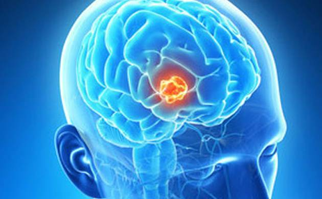 Scientists develop drug delivery method to target brain tumour