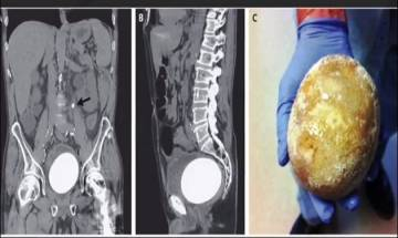 Stone as big as an Ostrich egg removed from man's bladder, doctors California hospital shocked