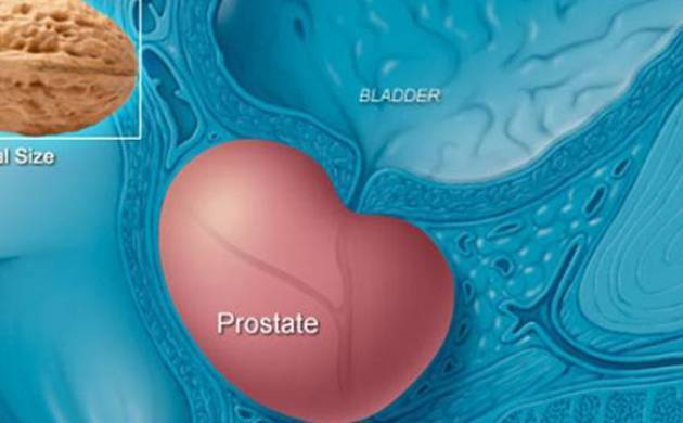 Prostate cancer cases on rise in rural India (File Image)