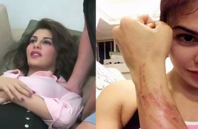 Jacqueline Fernandez involved in car accident after Race 3 party
