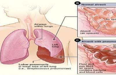 Pneumonia, major cause of death in India