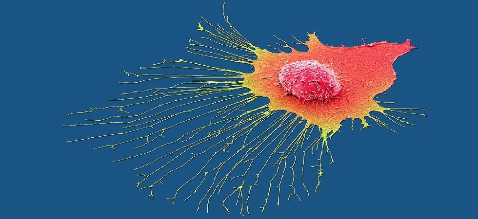 Cancer tracking AI can predict how tumours evolve (Image: Twitter)