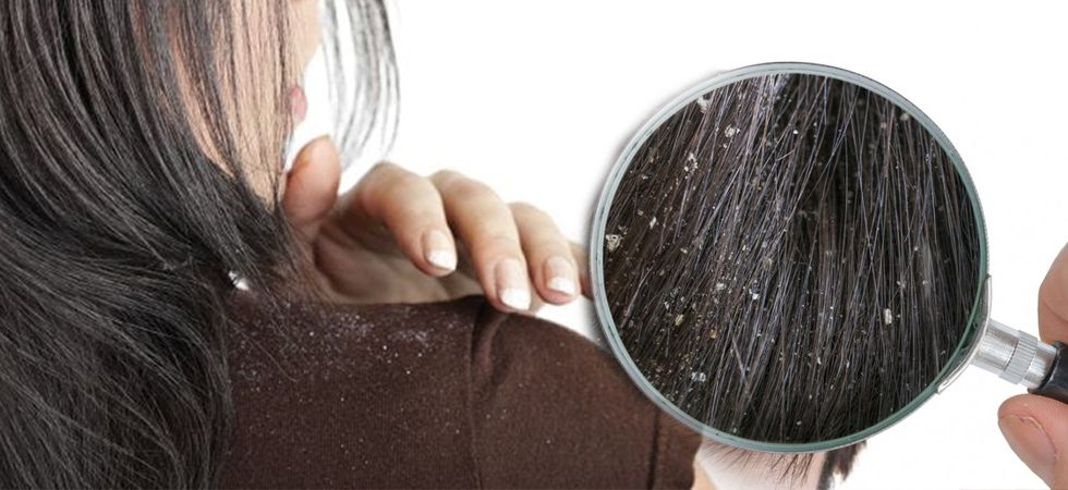 how do you cure dandruff permanently