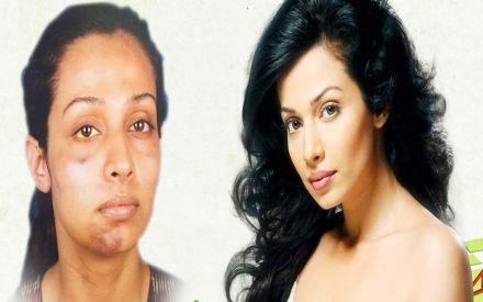 Stree actress accuses Gaurang Doshi of assault