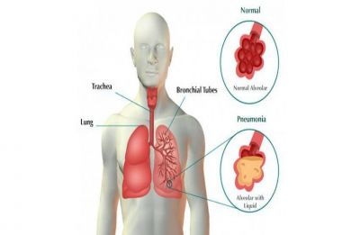 Pneumonia: Causes, symptoms and precautions