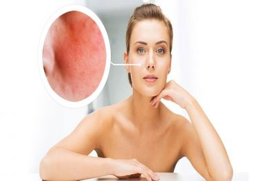 Eczema treatment: Easy home remedies to take care of this skin disorder