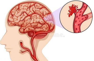 A drug to reduce brain bleeding and risk of strokes identified