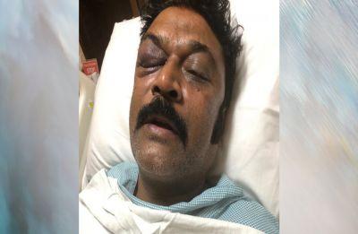 Karnataka Congress MLA Anand Singh files FIR against another party MLA JN Ganesh over alleged assault