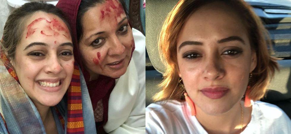 Yuvraj Singh's wife Hazel Keech undergoes nose surgery./ Image: Instagram