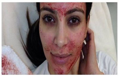 Vampire facials: Investigation launched after two people contract HIV