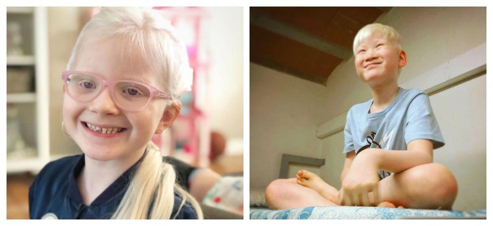 International Albinism Awareness Day 2019 (Photo: Instagram)