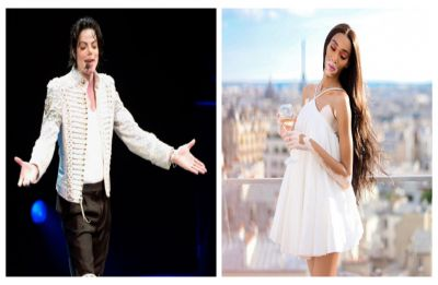 World vitiligo day 2019: From Michael Jackson to model Winnie Harlow, famous personalities with the condition