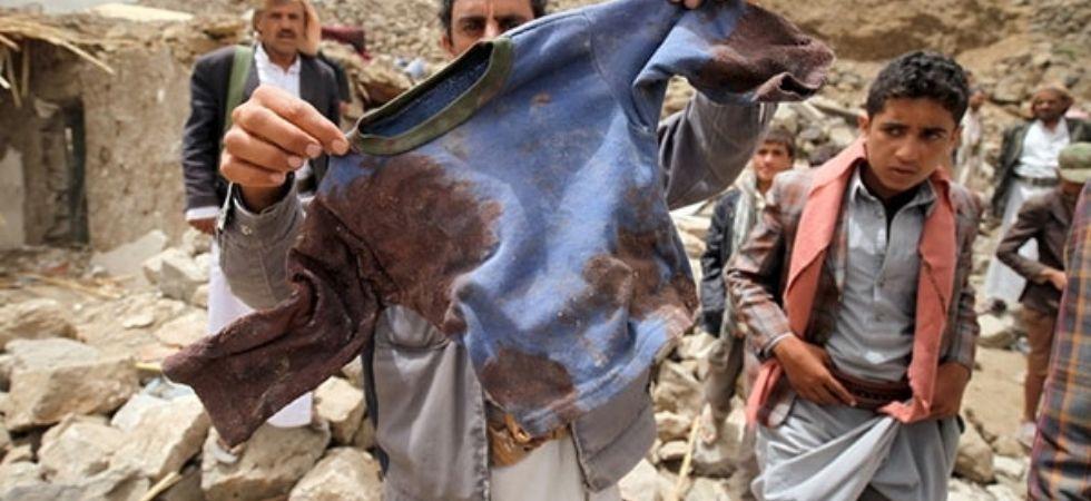 Child deaths in Yemen  (Photo Credit: Twitter)
