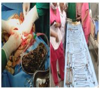 Prepare to make your stomachs turn! Doctors remove 1.5 kg of coins, jewelleries from woman's tummy