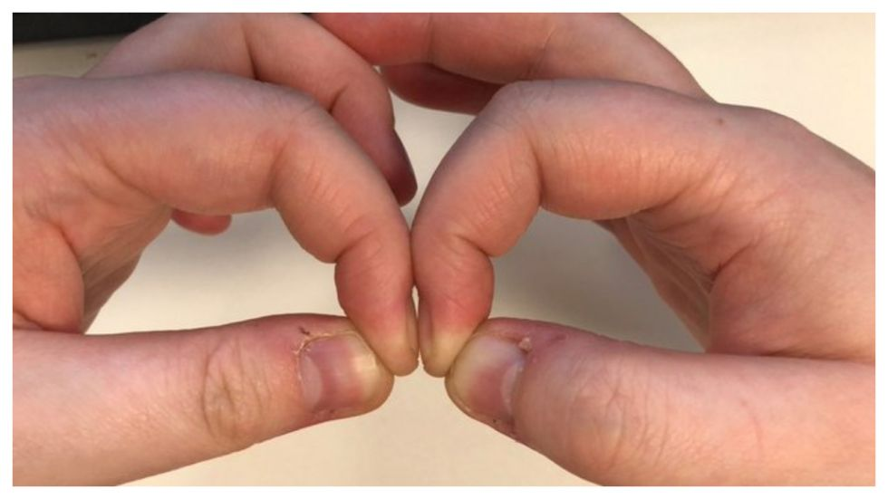 Diamond Gap' Finger Test May Help Detect Lung Cancer
