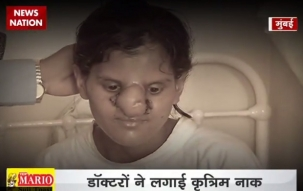 Khabar Achi Hai: 500-year old Tagliacozzi method helps 18-year-old get her nose back